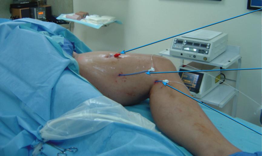 Slika 9 b Endovenski lasterski tretman tri pristreme vene