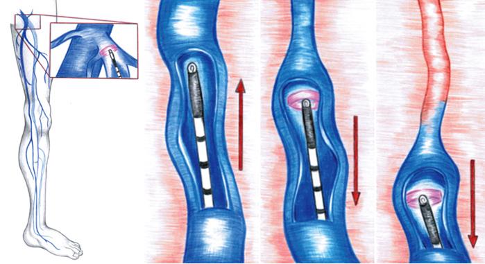 Varicose-Veins Laser