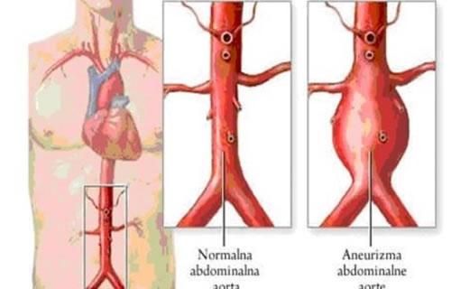 aneurizma-abdominalne-aorte