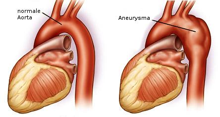 aneurizma-aorte-kod-srca