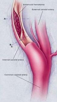 disekcija-intramuralni-hematom-imh-n