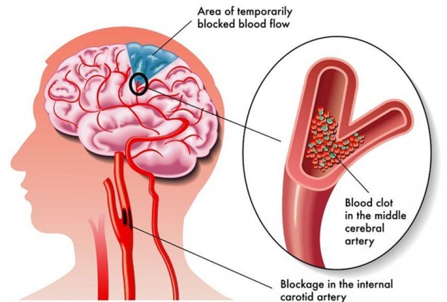 ischemic-attack-blood-clot-in-brain-area-33nprcfxfhd748y7n9oagw