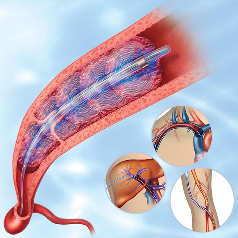 kateterknavodjena-direktna-tromboliticka-terapija