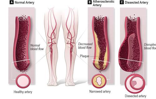 periferna-arterijaksa-bolest
