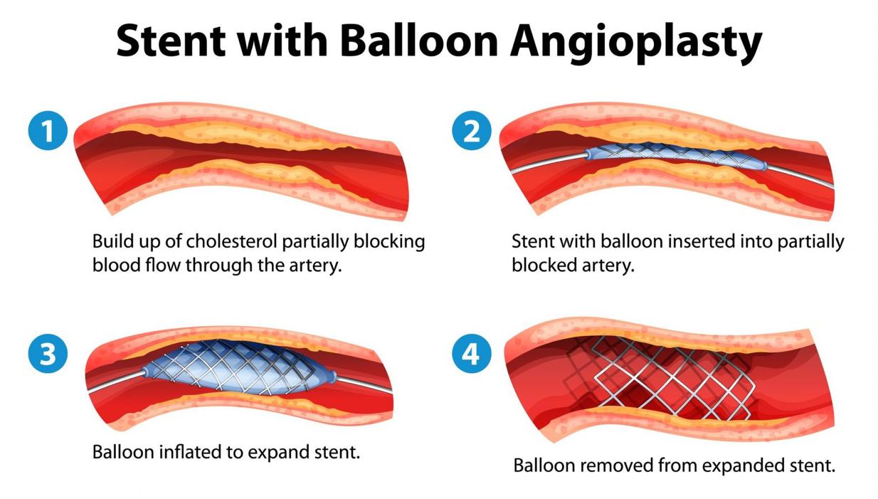 stent_angioplasty