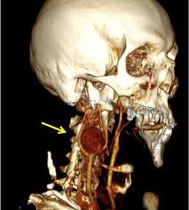 tumori-karotidnog-tijela